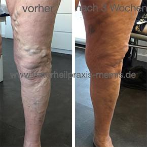 plasmainjektionen bei arthrose